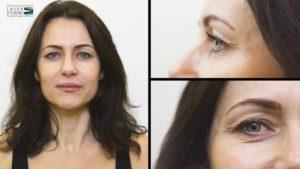 Laserowy lifting twarzy