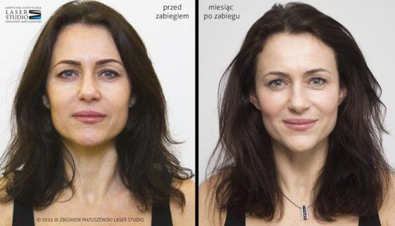 Laserowy lifting twarzy - metamorfoza w LAser Studio