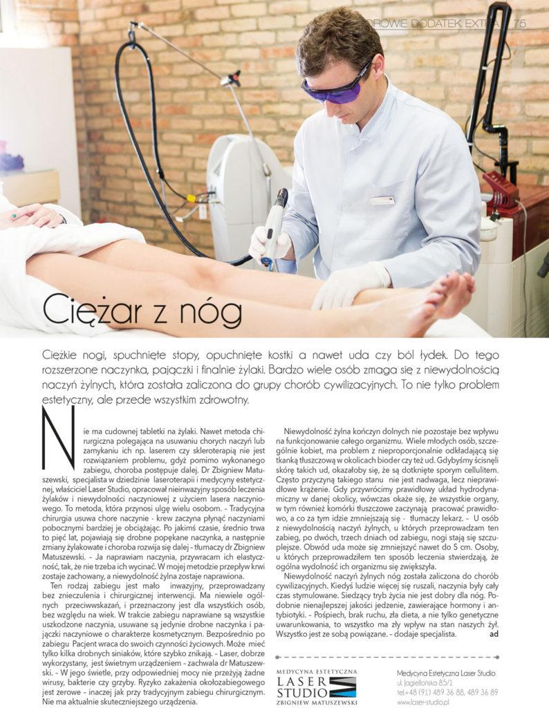 Laserowe leczenie żylaków - artykuł