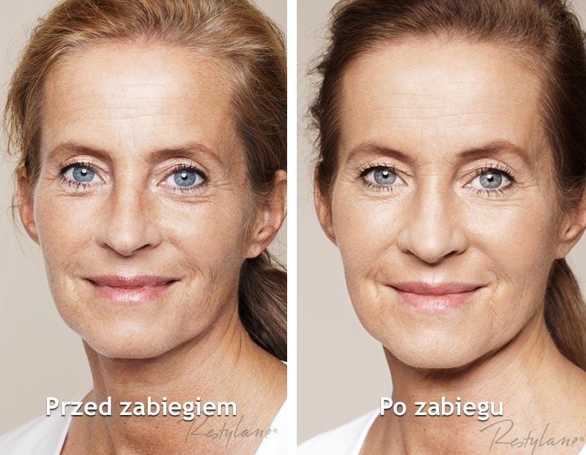 Restylane-Skinboosters-twarz