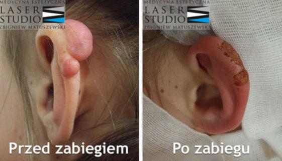 chirurgia kosmetyczna