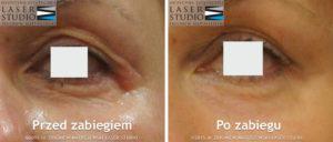 Laserowy lifting powiek - innowacyjna metoda