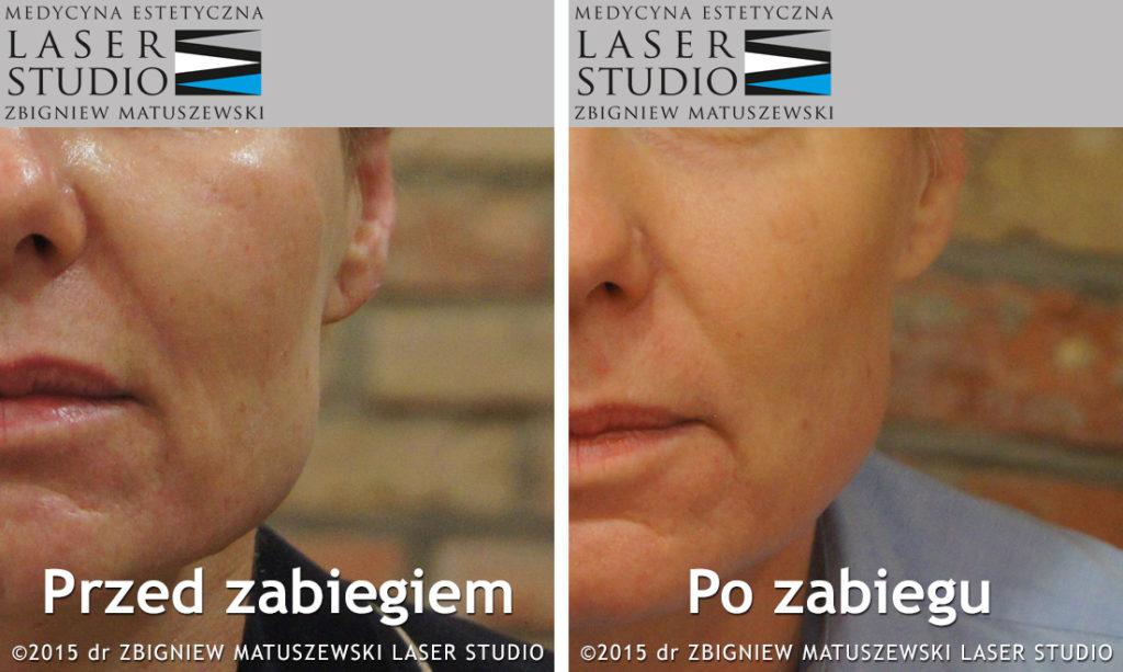 Laserowy lifting twarzy - innowacyjna metoda
