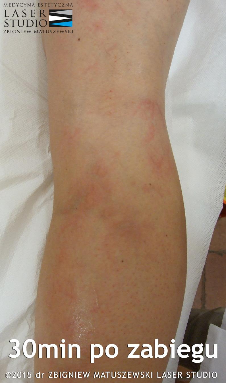 leczenie niewydolności naczyń kończyn dolnych